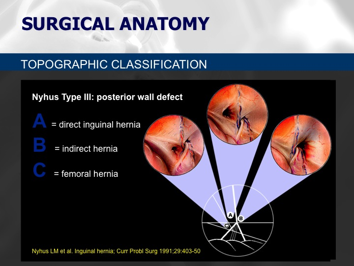 topographical classification Full-text paper (pdf): pathological and topographical classification of craniopharyngiomas: a literature review.