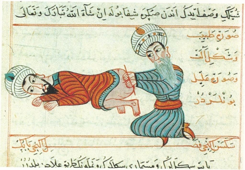 La Chirurgia di Ilkhani(1465) Legatura ed estirpazione delle emorroidi sanguinanti